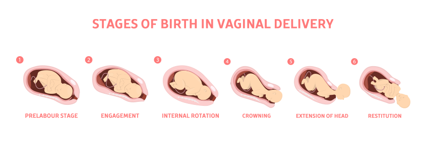 Stage of Normal Delivery